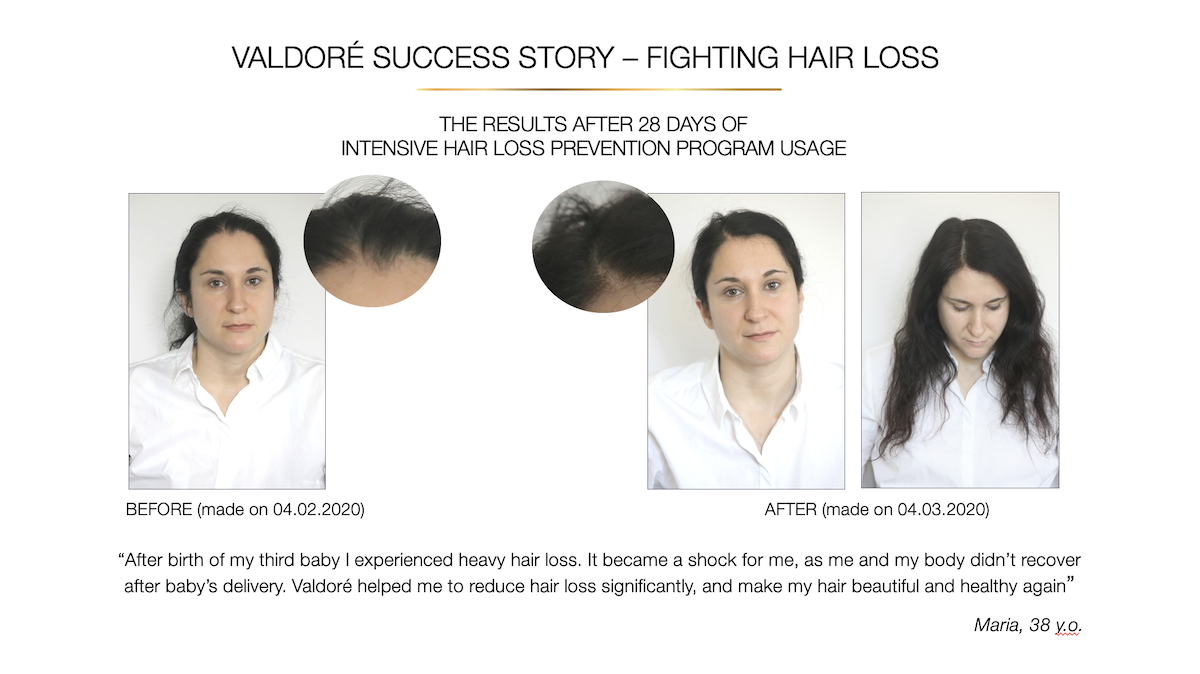 Results - hair loss treatment